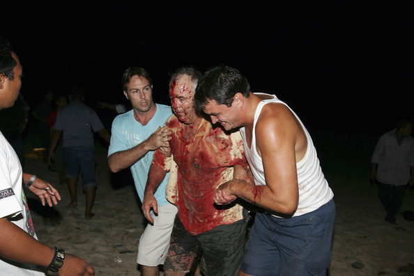 Series Of Explosions Rock Tourist Resort Of Bali BALI, INDONESIA - OCTOBER 1: (EDITOR'S NOTE: GRAPHIC CONTENT) A victim of a bomb blast is helped from a fish cafe on Jimbaran beach on October 1, 2005 in Bali, Indonesia. Several explosions were reported on Saturday evening in the Indonesian tourist resort of Bali. (Photo by Jason Childs/Getty Images)  -- Image Date: 01/10/2005  -- Image Date: 01/10/2005