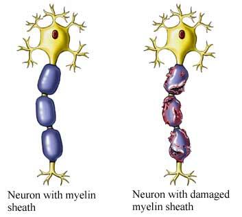 Myelin Sheath Damage
