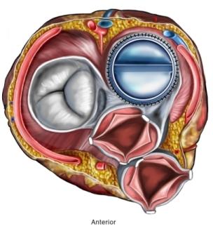 BP00039 97870 1 heart valve.jpg