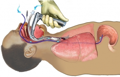 FI00035 96472 1 Endotracheal and Nasogastric Tube Insertion