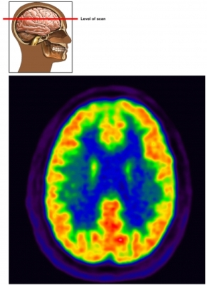 PET scan head brain