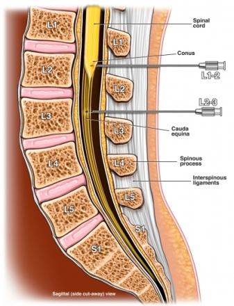 exh57177 97870 1 lumbar myelogram