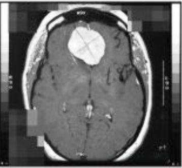 Meningioma MRI
