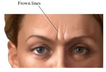 frown line
