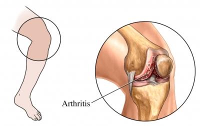 Knee arthitis