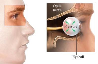 si1268 97870 1 glaucoma