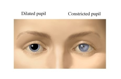 Dilated and Constricted pupil