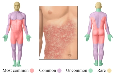 Hives Medication