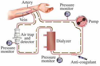 Dialysis pump