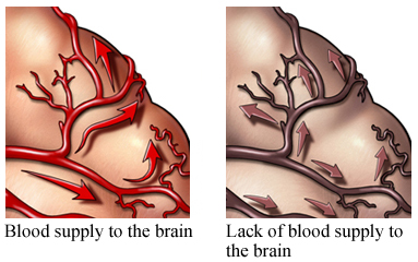 Blood Flow and Lack of Blood Flow to the Brain