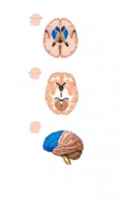Brain Damage Oxygen