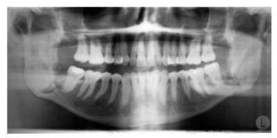 Jaw x-ray teeth