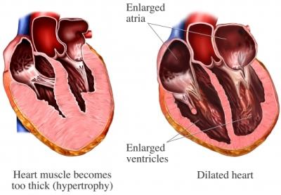 Heart wall disease