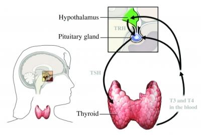 hyperthyroid