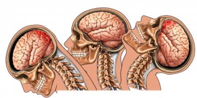 Whiplash brain